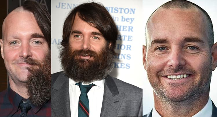 Will Forte Beard  Will Forte Hair  Will Forte Shaved