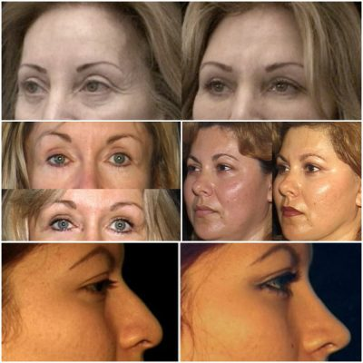 Before and After Photos, Dr, Mark Berman cosmetology surgeon